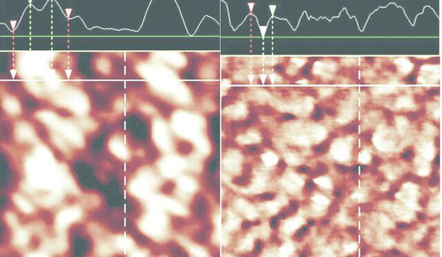 Fizjologiczne parametry płytek krwi wprocesie hemodializy zwierząt iich zmiany wywołane promieniowaniem zzakresu bliskiej podczerwieni (NIR)